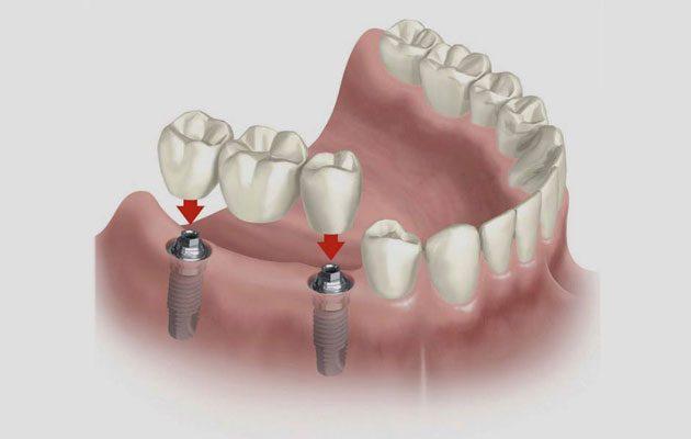 Centro Dental de Especialistas zona 10 - foto 1