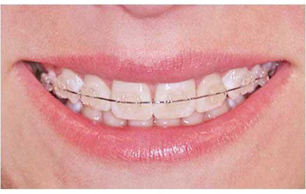 Dental Zimmer - foto 2