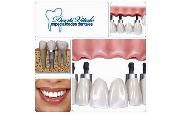 Denti Vitale Sixtino - foto 5