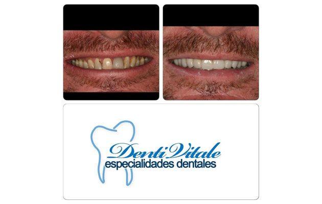 Denti Vitale Sixtino - foto 6