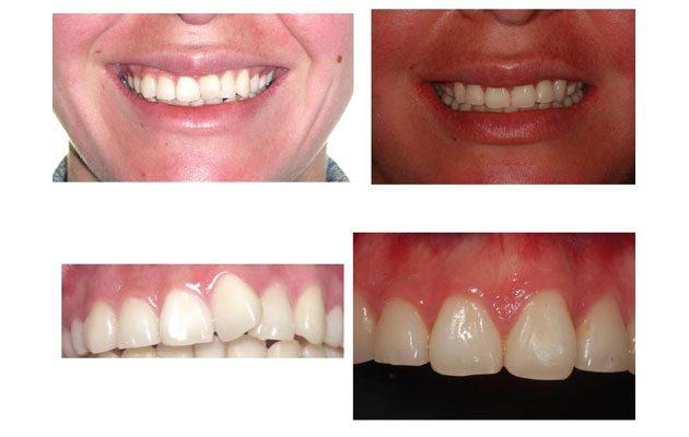 Dentis - foto 4