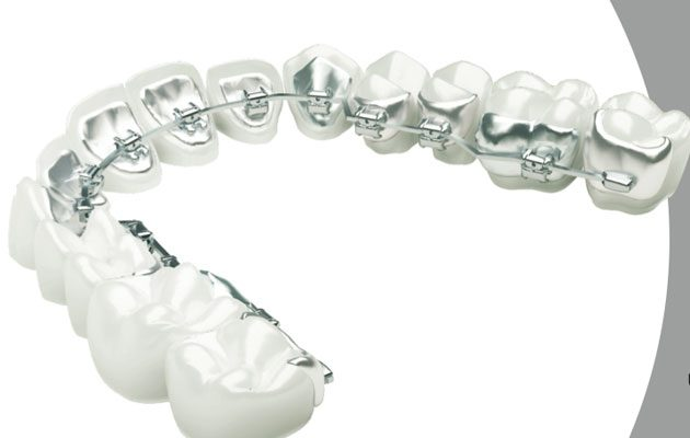 Dentis - foto 1