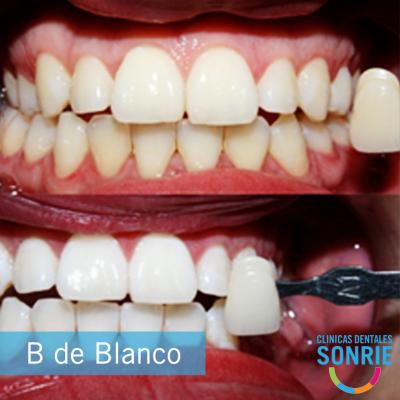 Clínica Dental Sonríe Zona 10 - foto 1