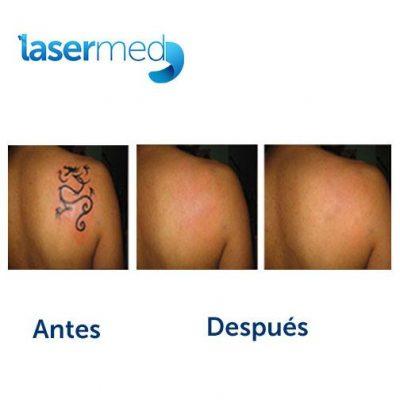 Lasermed - foto 3